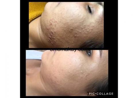 100% natural skin care